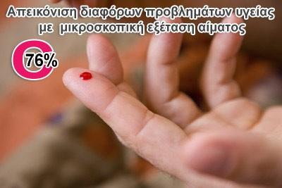 Από την Painmaster Hellas, 19€ για μια εξειδικευμένη απεικόνιση διαφόρων προβλημάτων υγείας με την μικροσκοπική εξέταση μιας σταγόνας αίματος που παίρνουμε από το δάχτυλο, ώστε να ανακαλύψουμε και να προλάβουμε μία πιθανή εκδήλωση ασθένειας. Έκπτωση 76%