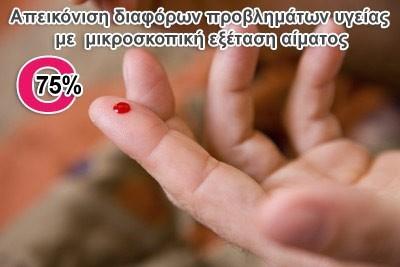 Από την Painmaster Hellas, 20€ για μια εξειδικευμένη απεικόνιση διαφόρων προβλημάτων υγείας με την μικροσκοπική εξέταση μιας σταγόνας αίματος που παίρνουμε από το δάχτυλο, ώστε να ανακαλύψουμε και να προλάβουμε μία πιθανή εκδήλωση ασθένειας. Έκπτωση 75%