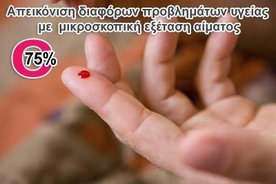 Μόνο 19€ για μια εξειδικευμένη απεικόνιση διαφόρων προβλημάτων υγείας, από την Painmaster Hellas, με την μικροσκοπική εξέταση μιας σταγόνας αίματος που παίρνουμε από το δάχτυλο, ώστε να ανακαλύψουμε και να προλάβουμε μία πιθανή εκδήλωση ασθένειας. Έκπτωση